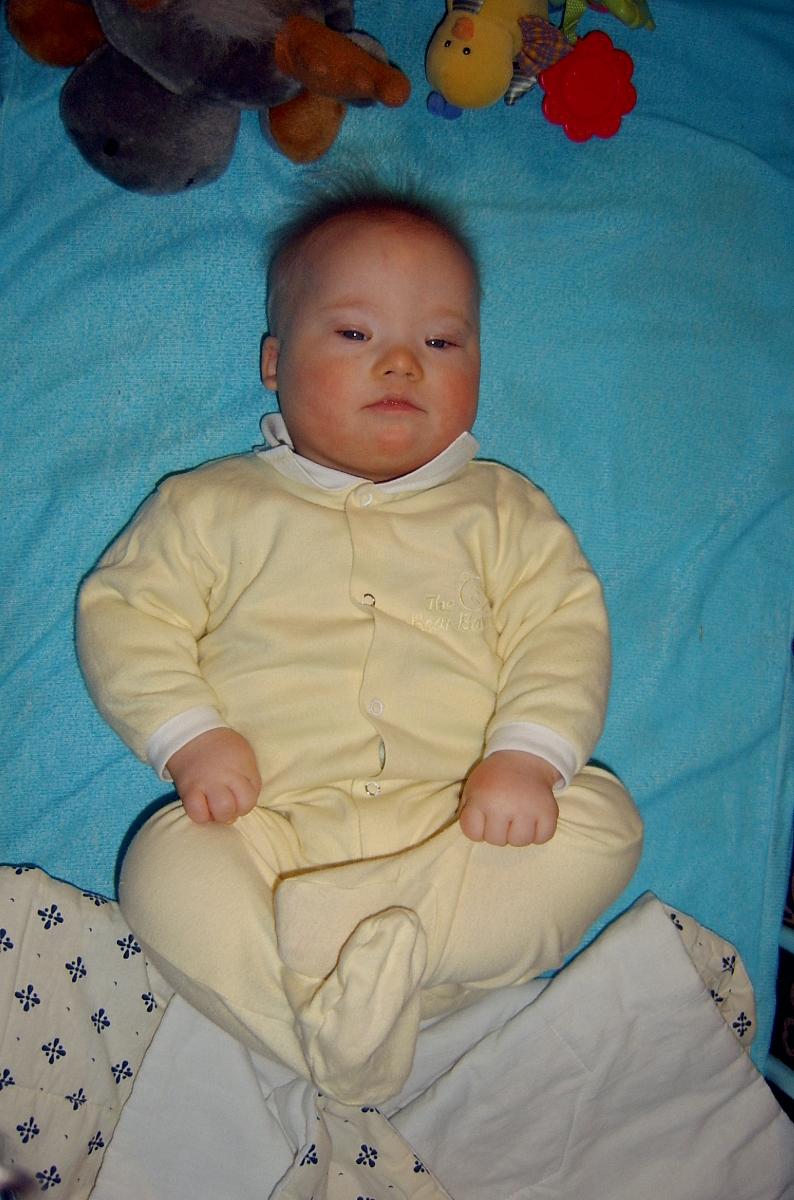 pół roczne dziecko z zespołem Downa