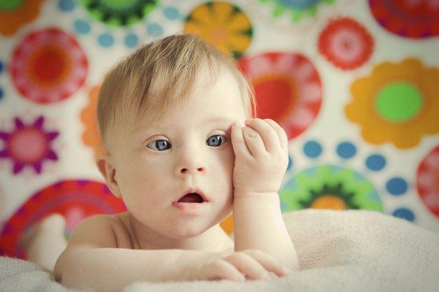 Zdjęcie dziecka z zespołem Downa